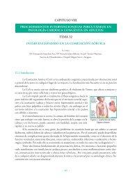Intervencionismo en la coartación de aorta - Asociación Española ...
