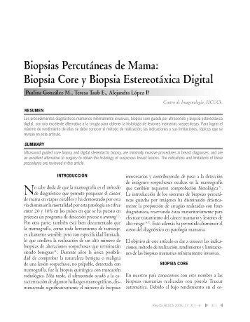 Biopsia Core y Biopsia Estereotáxica Digital - Hospital Clínico ...