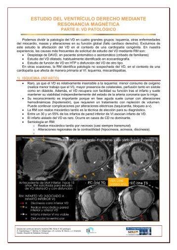 estudio del ventrículo derecho mediante resonancia magnética