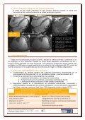 estudio del ventrículo derecho mediante resonancia magnética - Page 4