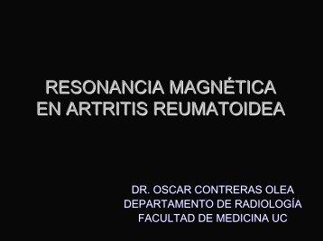 Resonancia Magnética en Artritis Reumatoide