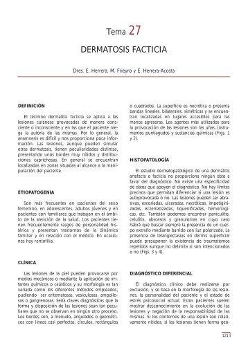 Tema 27 DERMATOSIS FACTICIA - e-dermatosis.com