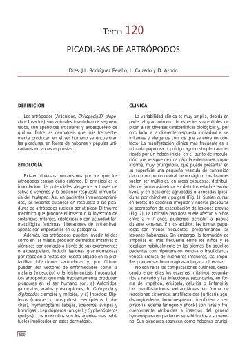 Tema 120 PICADURAS DE ARTRÓPODOS - e-dermatosis.com