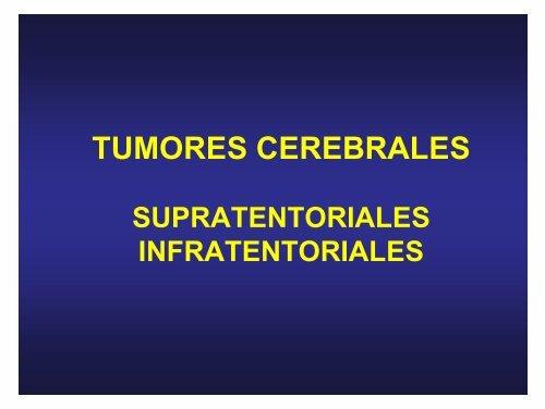 Tumor de células fusiformes hipertensión benigna o maligna