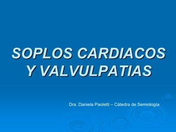 SOPLOS CARDIACOS - Semiología UNL