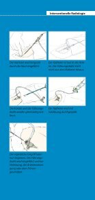 Patienteninformation Interventionelle Radiologie: Ihre Alternative zur ... - Seite 7