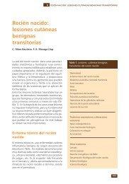 Recién nacido: lesiones cutáneas benignas transitorias - Asociación ...