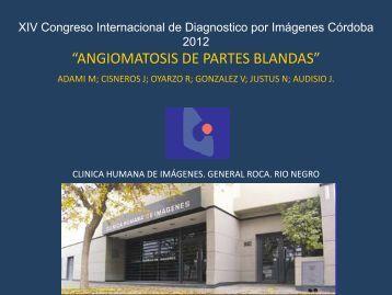 """ANGIOMATOSIS DE PARTES BLANDAS"" - Congreso SORDIC"