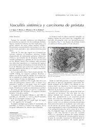 vasculitis sistémica y carcinoma de próstata asociado - Nefrología