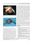 Vólvulus y duplicación yeyunal. Una asociación rara - edigraphic.com - Page 3