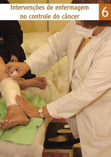 Intervenções de enfermagem no controle do câncer - Instituto ...
