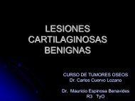 LESIONES CARTILAGINOSAS BENIGNAS