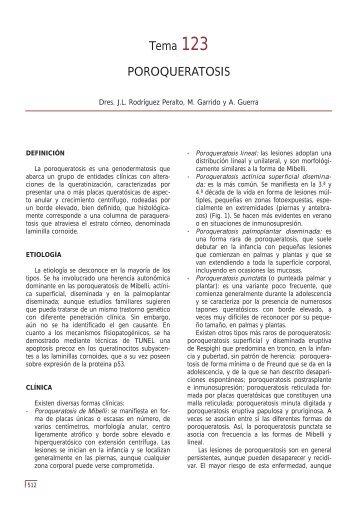 Tema 123 POROQUERATOSIS - e-dermatosis.com
