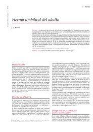 Hernia umbilical del adulto - cinco