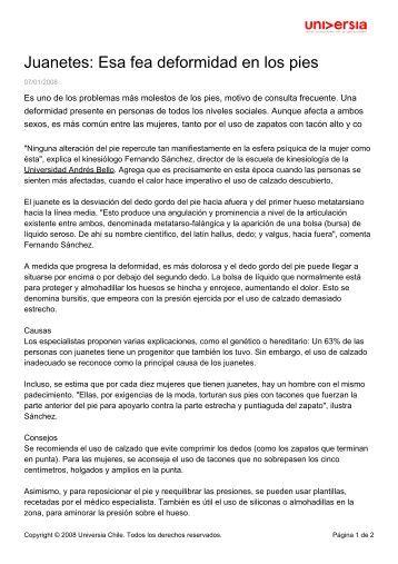 Juanetes: Esa fea deformidad en los pies - Noticias - Universia