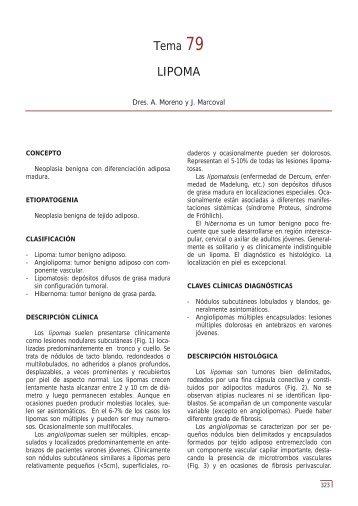 Tema 79 LIPOMA - e-dermatosis.com