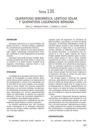 Tema 130 QUERATOSIS SEBORREICA ... - e-dermatosis.com