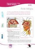 Dicas para Prevenir e Tratar a Rinite Alérgica - Aché - Page 3