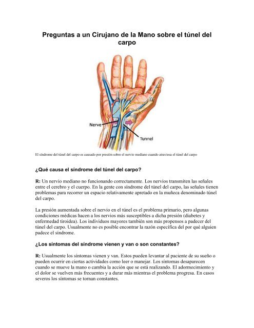 tunel carpal sintomas de diabetes