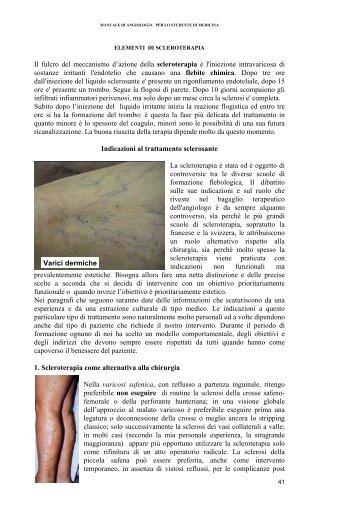 Il fulcro del meccanismo d'azione della scleroterapia è l ... - Medicina