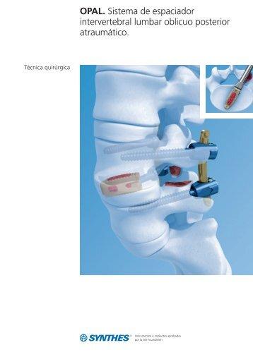 OPAL. Sistema de espaciador intervertebral lumbar ... - Synthes