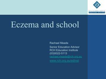 Eczema and school - The Royal Children's Hospital