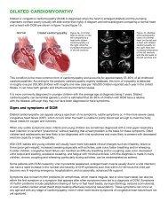DILATED CARDIOMYOPATHY - American Stroke Association