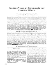 Anestesia Topica en Broncoscopia con Lidocaina Diluida