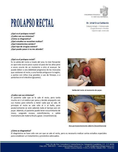 Sin prolapso cirugia tratamiento rectal