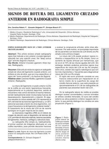 Anatomía descriptiva y funcional del ligamento cruzado anterior ...