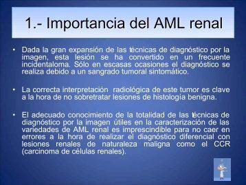 Importancia del AML renal