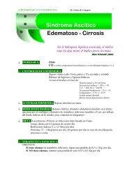 Síndrome Ascítico Edematoso - Cirrosis - La Página del Médico