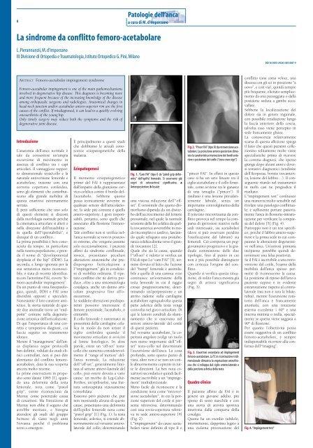 dolore articolare dellanca dopo radiazione pelvica