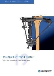 The XCaliber Hybrid Fixator - Orthofix.com