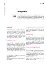 Piloroplastias - cinco