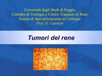 Carcinoma a cellule renali - Uroandrologiapuglia