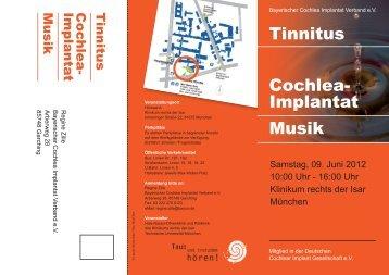 Tinnitus Cochlea- Implantat Musik
