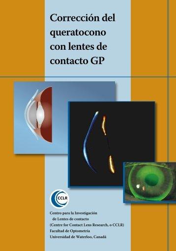 Corrección del queratocono con lentes de contacto GP - Centre for ...