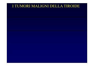 Lezione Cancro Tiroide