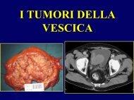 Tumore della Vescica - Università degli Studi di Trieste