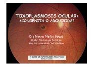 TOXOPLASMOSIS OCULAR: