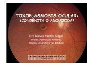 toxoplasmosis ocular - Upiip