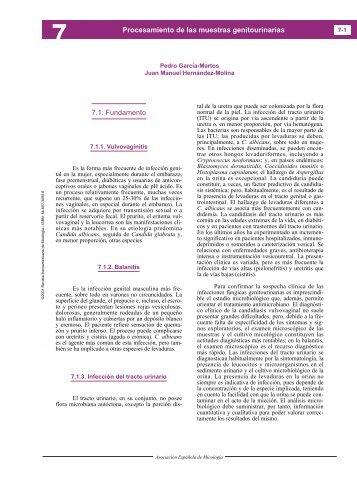Procesamiento de las muestras genitourinarias - Guía Práctica de ...