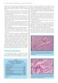 aspetti patogenetici ed istopatologici del sarcoma da ... - Vet.Journal - Page 6