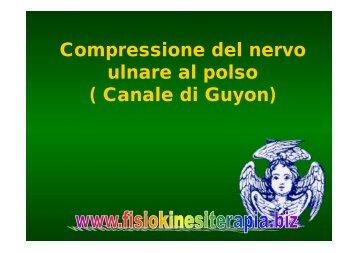 Compressione del nervo ulnare al polso ( Canale di Guyon)