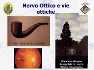 Nervo ottico e vie ottiche - Studio Oculistico dott. Amedeo Lucente