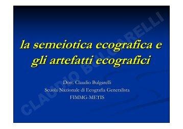 la semeiotica ecografica e gli artefatti ecografici - Sito web MIEI