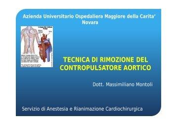 TECNICA DI RIMOZIONE DEL CONTROPULSATORE AORTICO (M ...