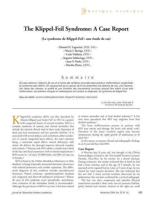 The Klippel Feil Syndrome A Case Report Canadian Dental