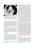 240-251 Osservatorio - Scala - Recenti Progressi in Medicina - Page 6